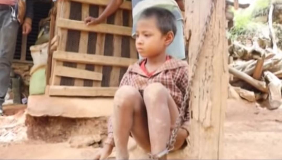 मन्त्री बरालद्धारा साङ्लोले बाधिएका ८ वर्षिय अपांगता बालकको उद्धार, उपचार शुरु