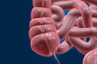 एपेन्डिसाइटिस भनेको कस्तो रोग हो ? कस्ता हुन्छन् यसका लक्षणहरु ?
